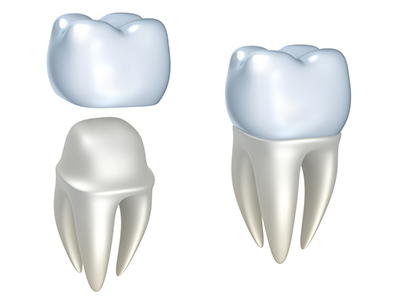 Dental Crowns Diagram used by Ann Arbor Dentist at Everwell Dentistry