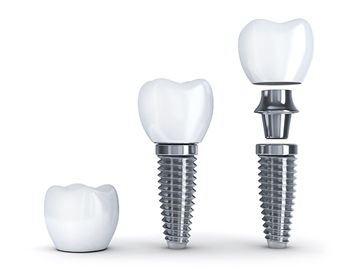 Dental implant pieces.