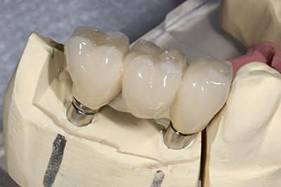 Model of dental implant-supported Dental Bridge from Everwell Dentistry.