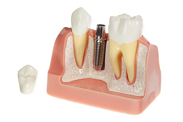 Model of Dental Implant Post in mouth for Ann Arbor dentist, Embree Dentistry.