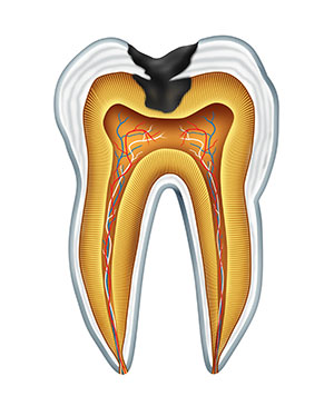 Diagram of a tooth with a cavity used by Ann Arbor dentist at Embree Dentistry.