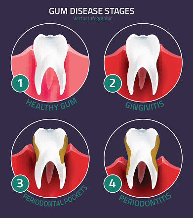 Stages of gingivitis diagram used by Ann Arbor dentist at Embree Dentistry.